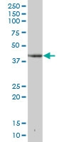 H00001725-B02 - Deoxyhypusine synthase (DHPS)