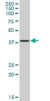H00001731-B02P - Septin-1 (SEPT1)