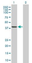 H00001731-D01P - Septin-1 (SEPT1)