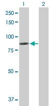 H00001756-D01P - Dystrophin / DMD