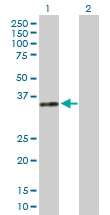 H00001773-B01P - Deoxyribonuclease-1