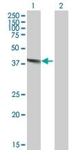 H00001777-B01P - Deoxyribonuclease-2-alpha