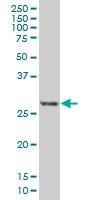 H00001827-M01A - Calcipressin-1