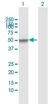 H00001890-D01 - Thymidine phosphorylase (TYMP)