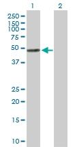 H00001890-D01P - Thymidine phosphorylase (TYMP)