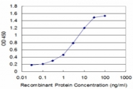 H00001909-M02 - Endothelin A receptor
