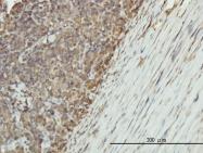 H00002023-M01 - Alpha-enolase / ENO1