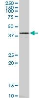 H00002026-B01 - Neuron specific enolase