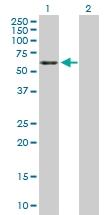 H00002026-D01P - Neuron specific enolase