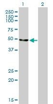 H00002026-M01 - Neuron specific enolase