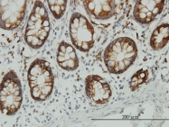 H00002027-M01 - Enolase beta