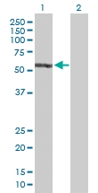 H00002035-D01P - EPB41 / Protein 4.1