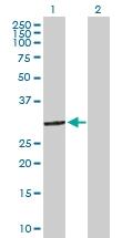 H00002040-D01P - Stomatin / STOM