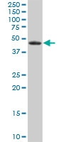 H00002052-B01P - Epoxide hydrolase 1 / EPHX1