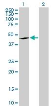 H00002052-D01P - Epoxide hydrolase 1 / EPHX1