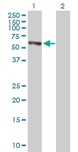 H00002053-B01P - Epoxide hydrolase 2 / EPHX2