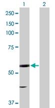 H00002053-D01P - Epoxide hydrolase 2 / EPHX2