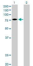 H00002057-D01P - Erythropoietin receptor