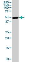 H00002057-M02 - Erythropoietin receptor