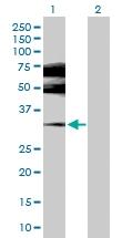 H00002100-D01P - Estrogen receptor beta