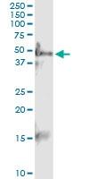 H00002104-D01 - Estrogen-related receptor gamma