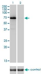 H00002147-M01 - Prothrombin (F2)