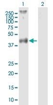 H00002149-B02P - Thrombin receptor / F2R