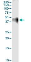 H00002149-D01 - Thrombin receptor / F2R