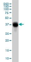 H00002213-M01 - CD32 / FcRII-a