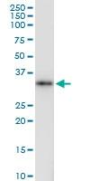 H00002219-D01 - Ficolin-1