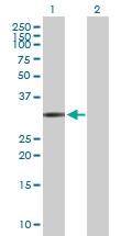H00002219-D01P - Ficolin-1