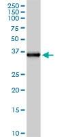 H00002220-D01 - Ficolin-2