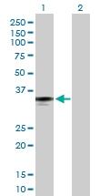 H00002220-D01P - Ficolin-2