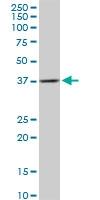 H00002224-B01P - FPP synthetase