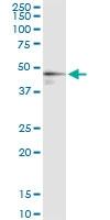 H00002224-D01 - FPP synthetase