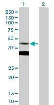 H00002224-D01P - FPP synthetase
