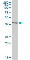 H00002235-B01P - Ferrochelatase
