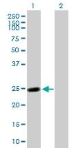 H00002243-B02 - Fibrinogen alpha chain