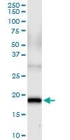 H00002246-D01 - FGF acidic / FGF1