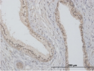 H00002319-B01P - Flotillin-2 / FLOT2