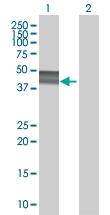 H00002331-B02 - Fibromodulin