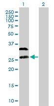 H00002348-B01P - Folate receptor alpha