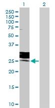 H00002352-D01P - Folate receptor gamma