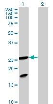 H00002395-B01P - Frataxin (FXN)
