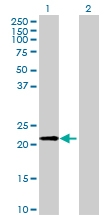 H00002495-B01 - Ferritin heavy chain (FTH1)