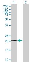 H00002495-B01P - Ferritin heavy chain (FTH1)