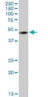 H00002517-D01P - Alpha-L-fucosidase 1 / FUCA1
