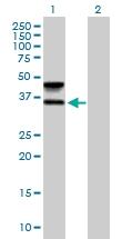 H00002528-B01P - Fucosyltransferase 6