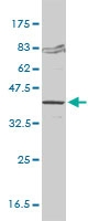 H00002531-M01 - KDS reductase