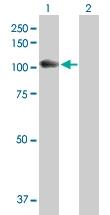 H00002548-D01P - Alpha-glucosidase / LYAG
